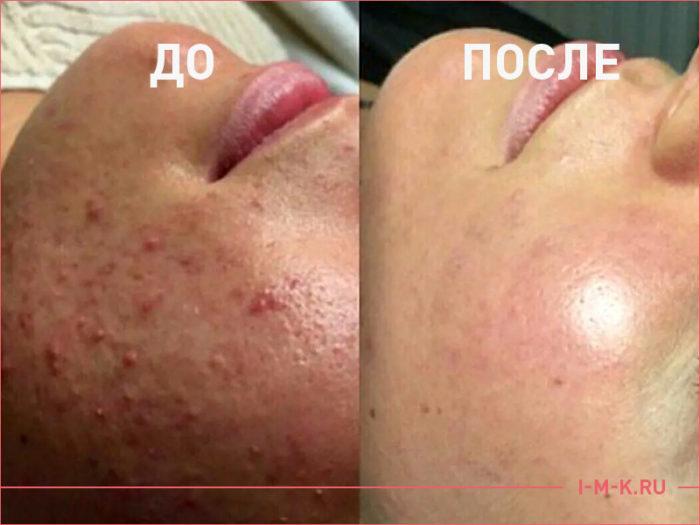 Результат лечения угревой болезни.