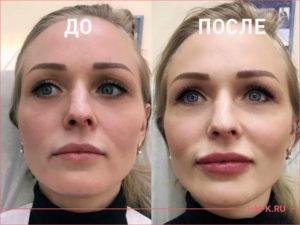 Объемная коррекция губ препаратом RESTYLANE LIP VOLUME 1 мл